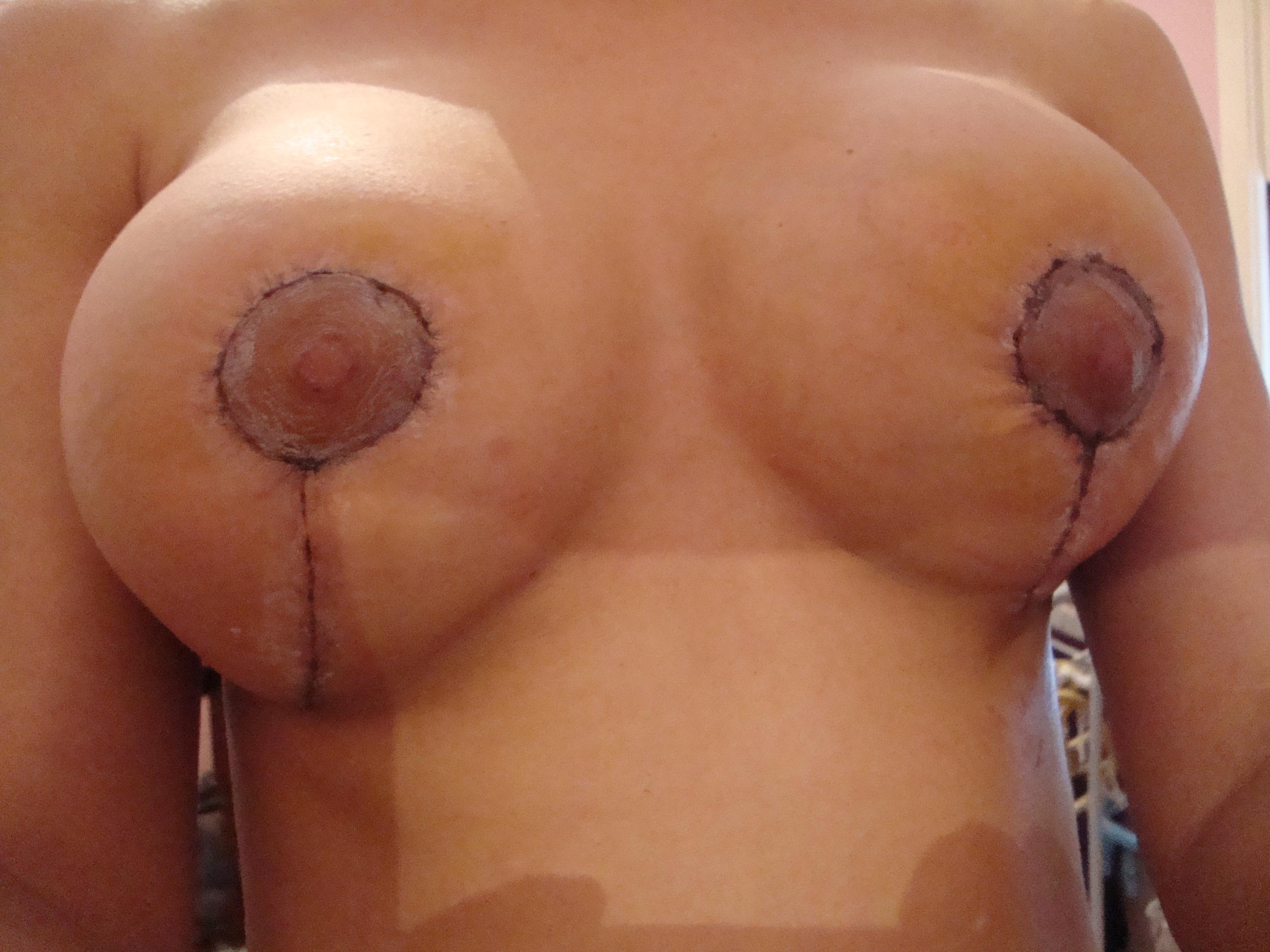 Aumento em um peito com tiras